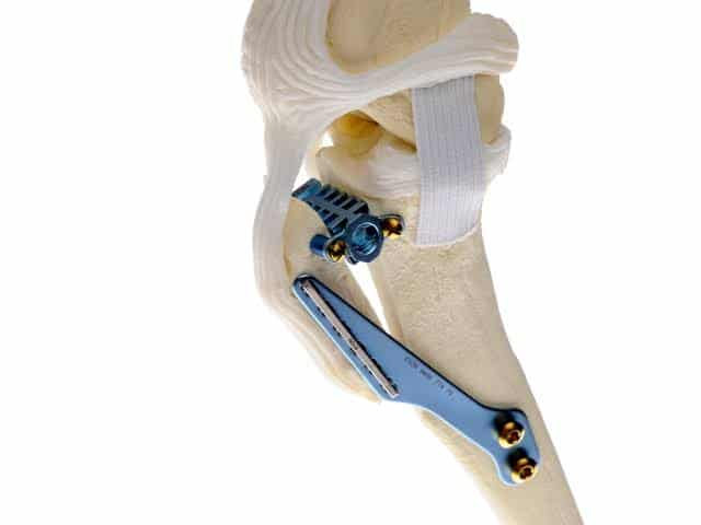 Surgical options for cruciate injuries in dogs -